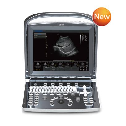 Chison ECO1 Ultrasound System