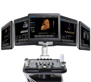Chison i8 Color Doppler Ultrasound System