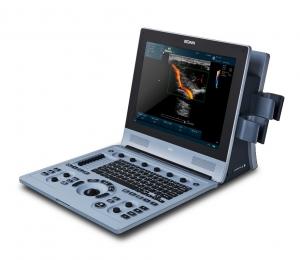 Edan U60 Diagnostic Ultrasound System