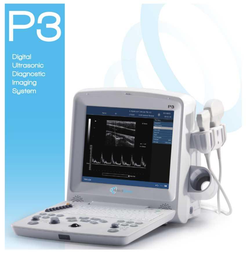 MediSono P3 Ultrasound System