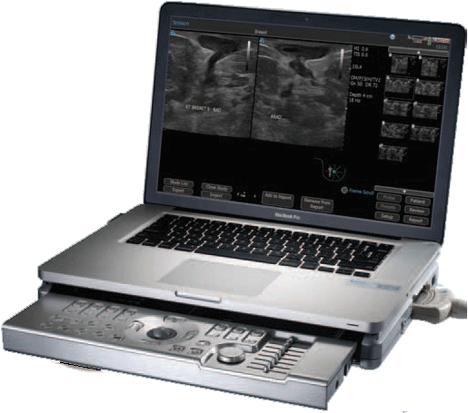 Terason t3000cv Ultrasound