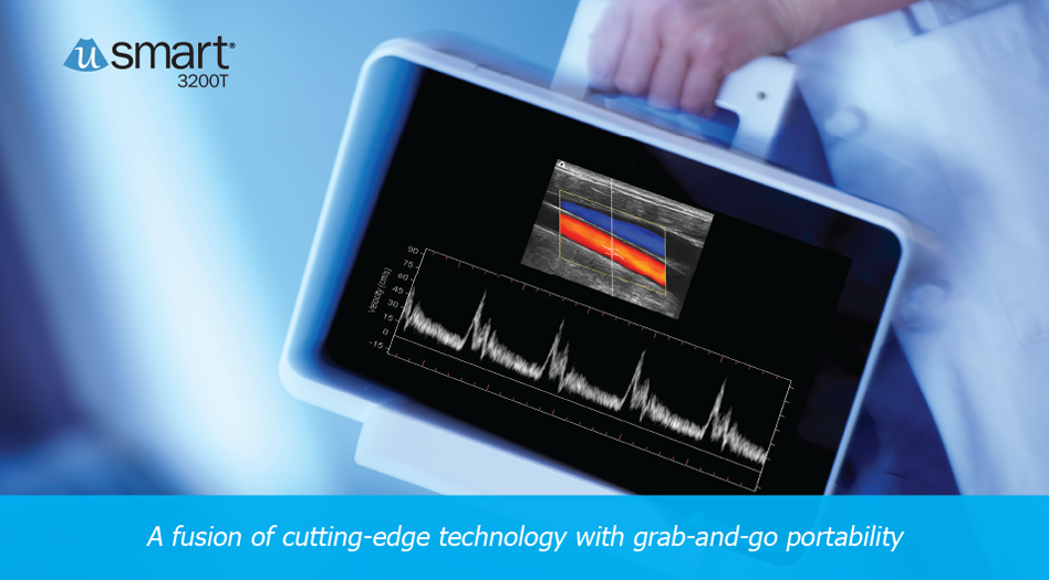 Terason uSmart 3200T Ultrasound