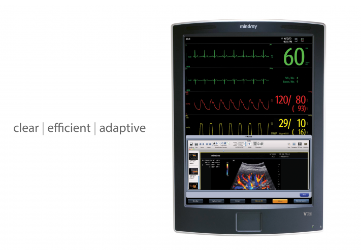 Mindray Patient Monitor V21™