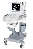 Chison 8300 Portable Ultrasound System
