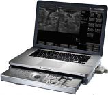 Terason t3000 Ultrasound