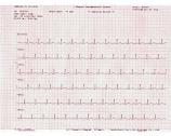 Bionet ECG-PP ECG paper