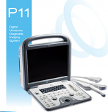 MediSono P11 Digital Ultrasonic Diagnostic Imaging System