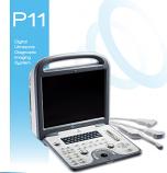 MediSono P11 Digital Ultrasonic Diagnostic Imaging System